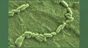 Bifidobacterium animalis lactis